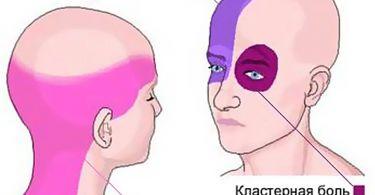 Как болит голова при мигрени, первые признаки