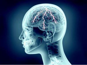 Ваш гид по заболеваниям головной боли, причинам, а также методам лечения