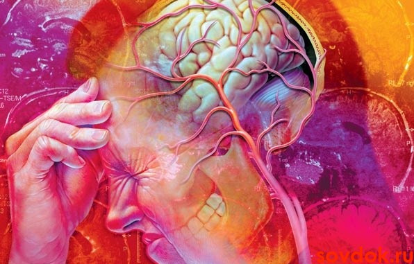 Мигрень последствия и симптомы thumbnail