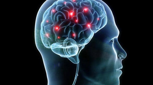 устранение симптомов мигрени