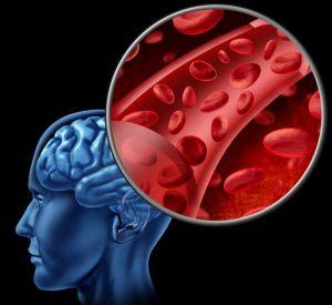 спазмом сосудов причина мигрени