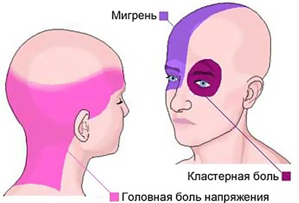 Симптомы мигрени, боль с одной стороны головы