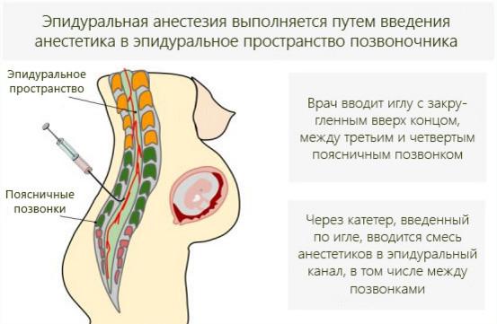 Эпидуральная анестезия беременной