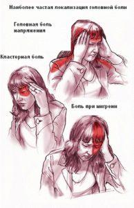Симптомы мигрени у женщин (30, 50 лет, после родов), признаки, причины возникновения, лечение, возможные последствия
