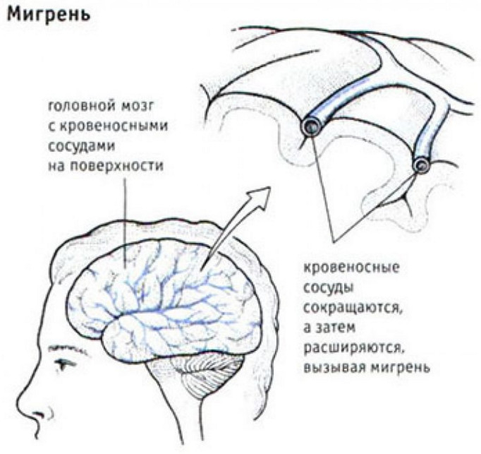 Спазмы сосудов вызывающие мигрень с аурой