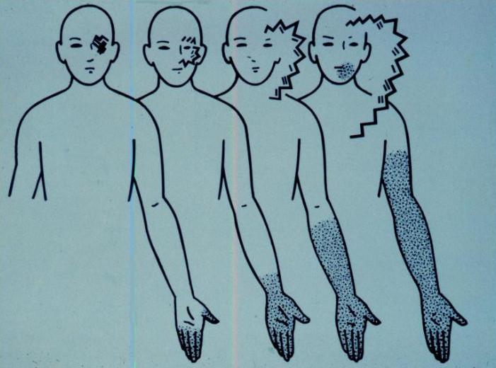 Симптомы тактильной формы ауры