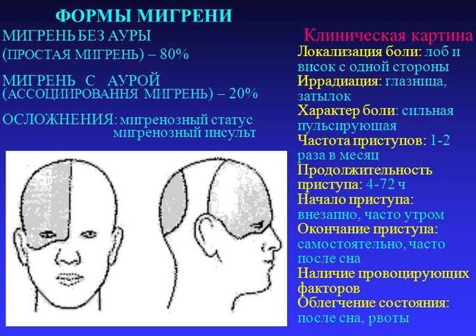 клиническая картина формы мигрени
