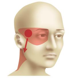 мигрень болит одна сторона головы