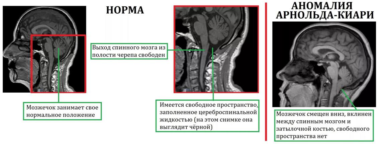 Болит голова головокружение ухудшение зрения