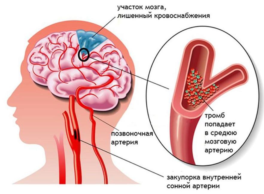 Почему болит затылок и кружится голова