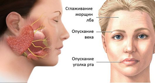 Невралгия тройничного нерва схема