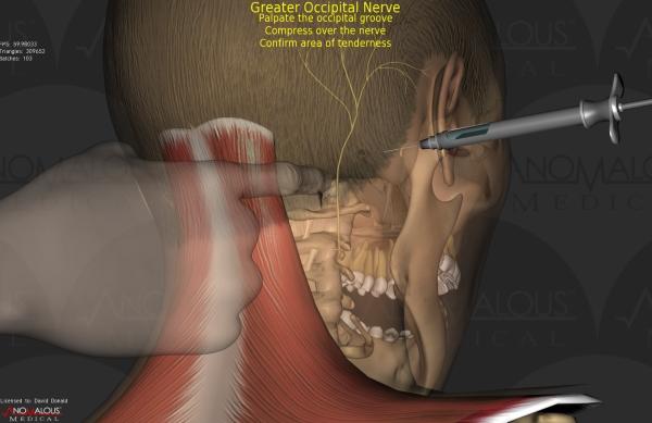 Как лечить невралгию затылочного нерва, симптомы заболевания и причины